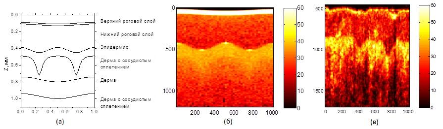 Моделирование ОКТ-изображения кожи человека: (а) модель кожи человека; (б) ОКТ-изображения кожи человека, рассчитанное методом Монте-Карло; (в) типичное экспериментальное ОКТ-изображения кожи человека.